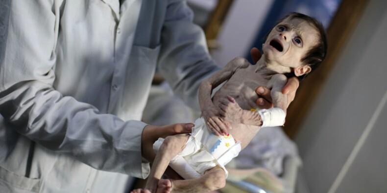 Syrie: dans la Ghouta assiégée, de l'eau bouillante pour dîner