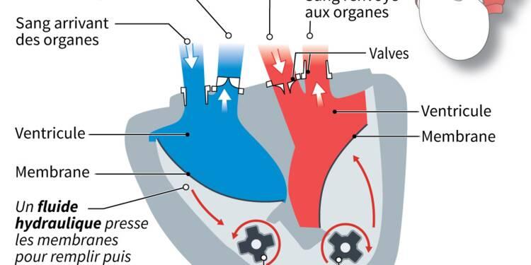 Cœur artificiel: Carmat s'associe à une société d'impression 3D