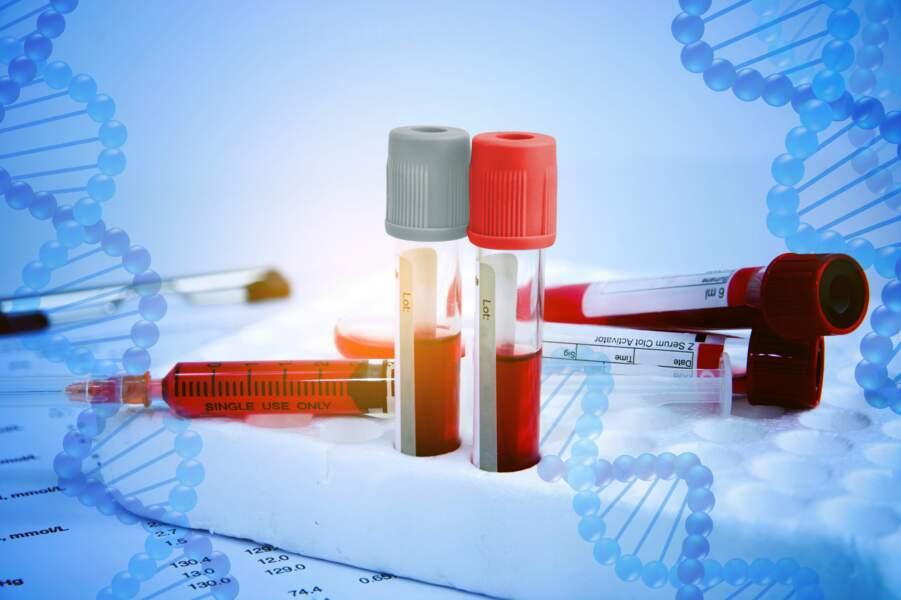 Sanofi acquiert Bioverativ, un poids lourd des traitements contre l'hémophilie, pour 9 milliards d'euros