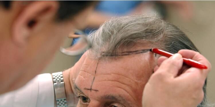 greffe de cheveux fue avis