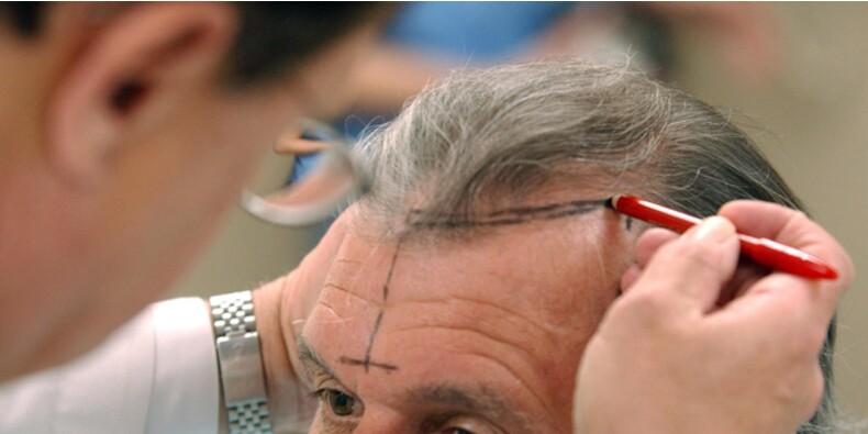Les prix des greffes de cheveux s'envolent