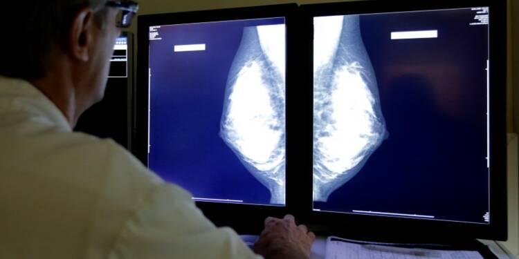 Survie en hausse pour les cancers les plus fréquents en France
