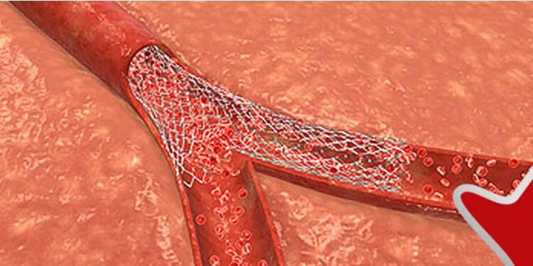 La biotech Stentys, qui traite les crises cardiaques, s'est envolée de 60% en Bourse