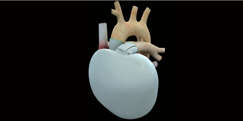 Carmat : l'action tient le choc après le décès causé par une défaillance du coeur artificiel