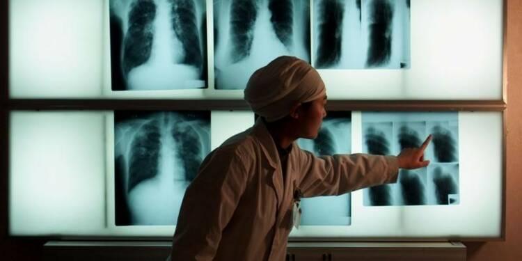 La tuberculose tue moins, mais autant que le VIH, dit l'OMS