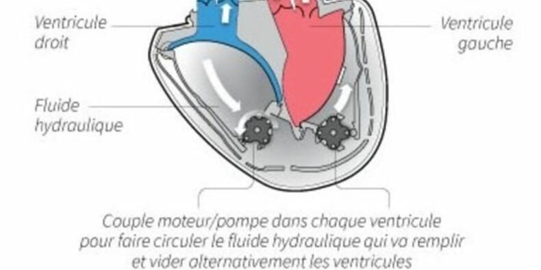 Un coeur artificiel Carmat implantée chez un troisième patient