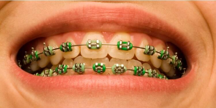 Le scandale des appareils dentaires