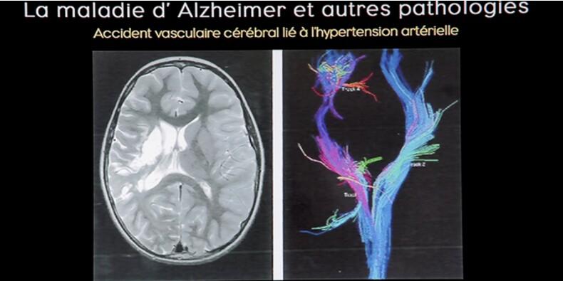 Bientôt un vaccin contre alzheimer et des traitements post-AVC