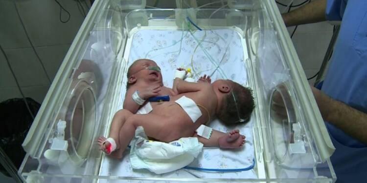 Appel pour une opération à l'étranger de siamoises nées à Gaza