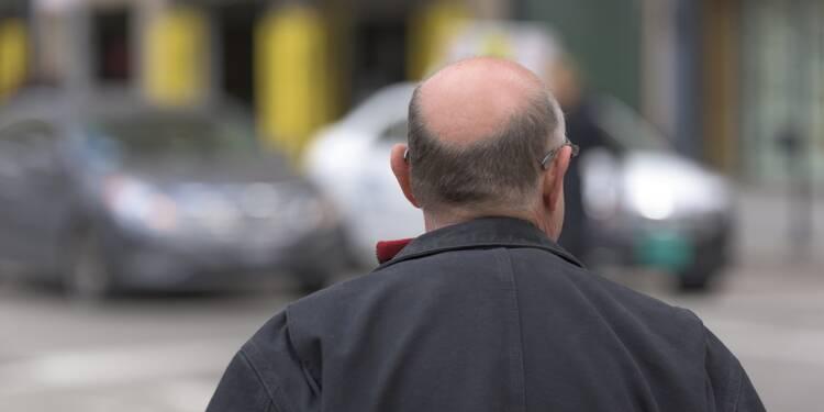 Faut-il interdire le Propecia, l'anti-chute de cheveux?