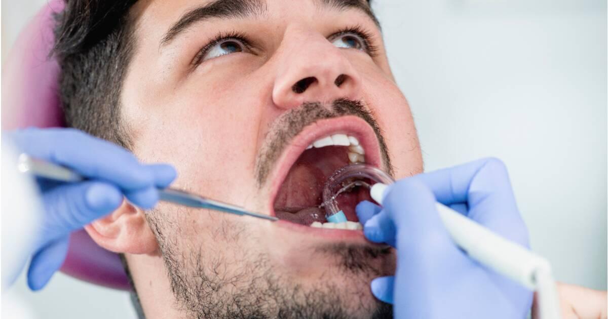 4be52ffd130a8 Les graves dérives des gouttières dentaires - Capital.fr