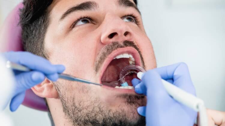 Les graves dérives des gouttières dentaires