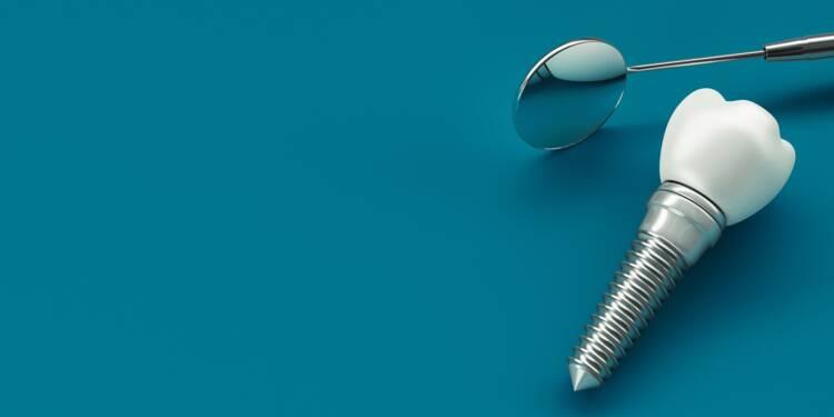 Couronne dentaire : un reste à charge encore très élevé