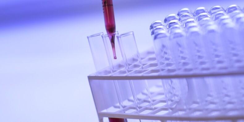 Bientôt un test capable de détecter les formes graves de Covid-19 ?