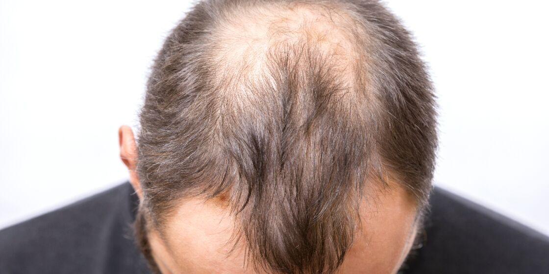 Glatze vollbart prodiftusu: Bart