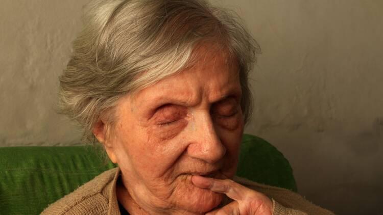 Alzheimer : le traitement d'Eli Lilly déçoit