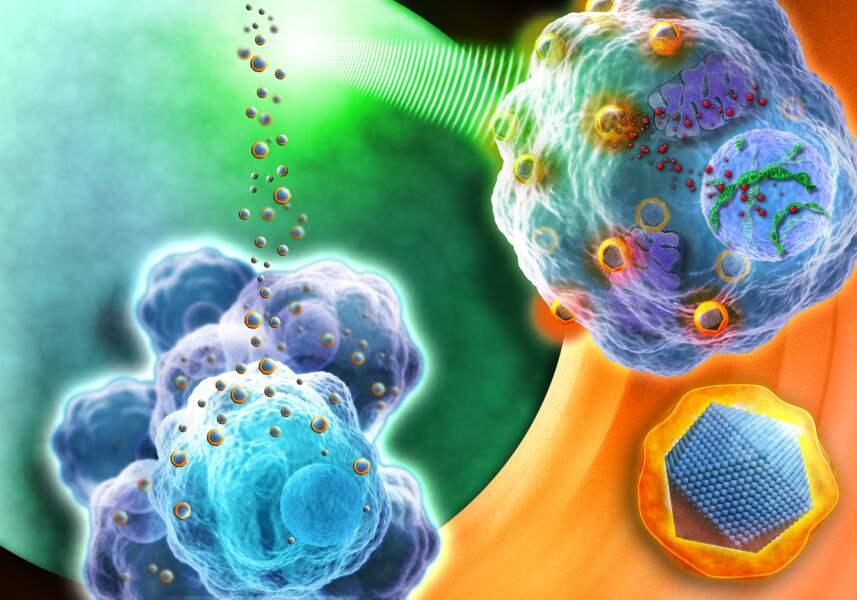 Nanobiotix, des nanoparticules pour mieux cibler les radiothérapies