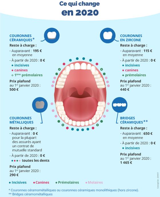 Santé : ces soins dentaires qui ne vous coûtent plus rien en 2020 34c3bb38-e8fe-4b60-ae2f-f6e5df2387ec